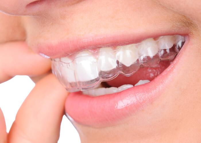 klar smile bikin gigi rata tanpa banyak biaya perawatan